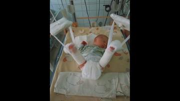 Podczas porodu lekarze złamali dziecku nogę