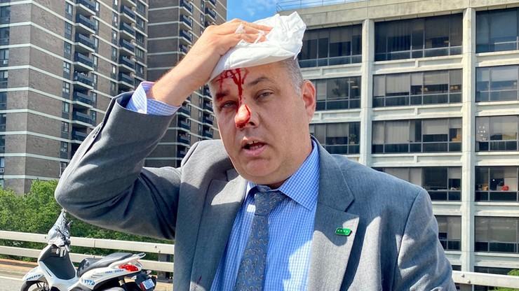 Szef nowojorskiej policji zraniony podczas demonstracji