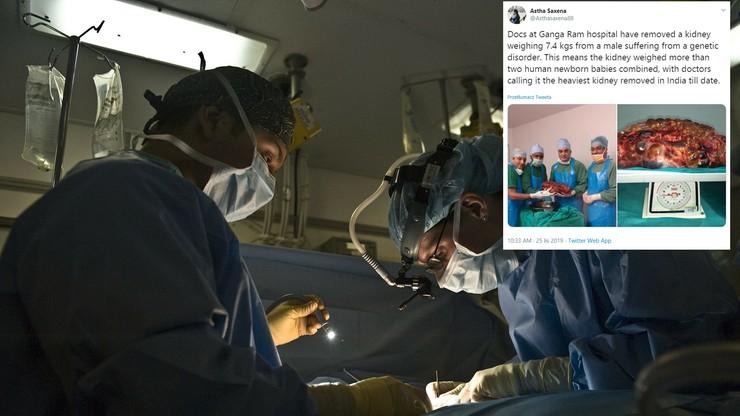Chirurdzy wycięli ponad 7-kilogramową nerkę. Przeciętna jest 70 razy mniejsza